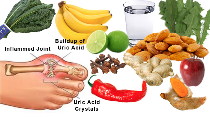 gout-meal-plans
